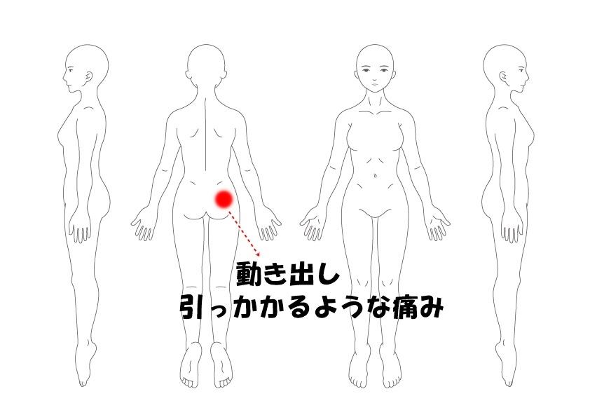 腰痛 症例