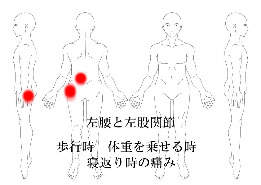 腰痛 股関節痛